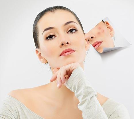 Acne_Pimple-Treatment